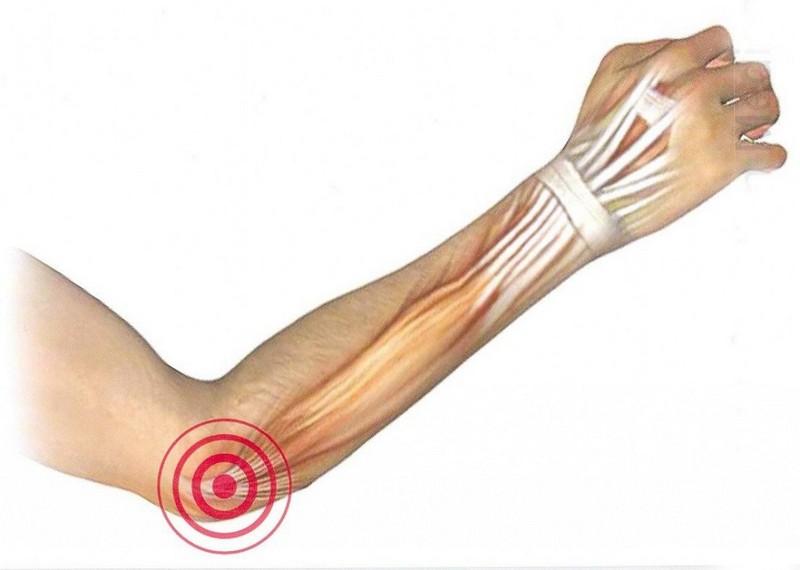 Снять Боль В Суставах Пальцев Ног