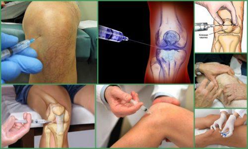 Артроз уколы дипроспана в коленном суставе
